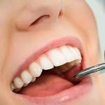 boca-dientes--644x362