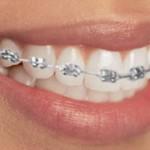 ortodoncia-brackets-dentista-clinica
