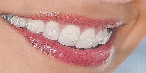 ortodoncia_invisible